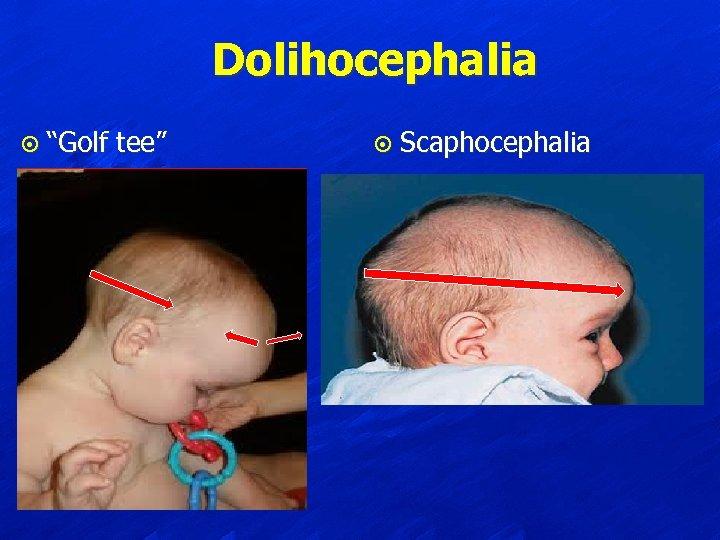 "Dolihocephalia ¤ ""Golf tee"" ¤ Scaphocephalia"