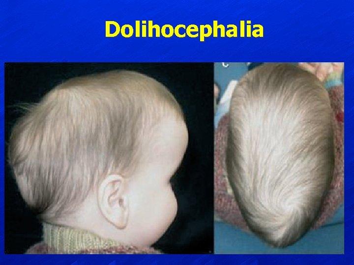 Dolihocephalia