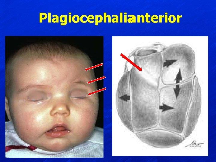 Plagiocephalia anterior
