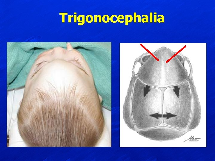 Trigonocephalia