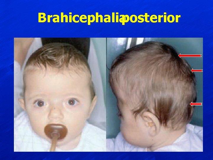 Brahicephalia posterior