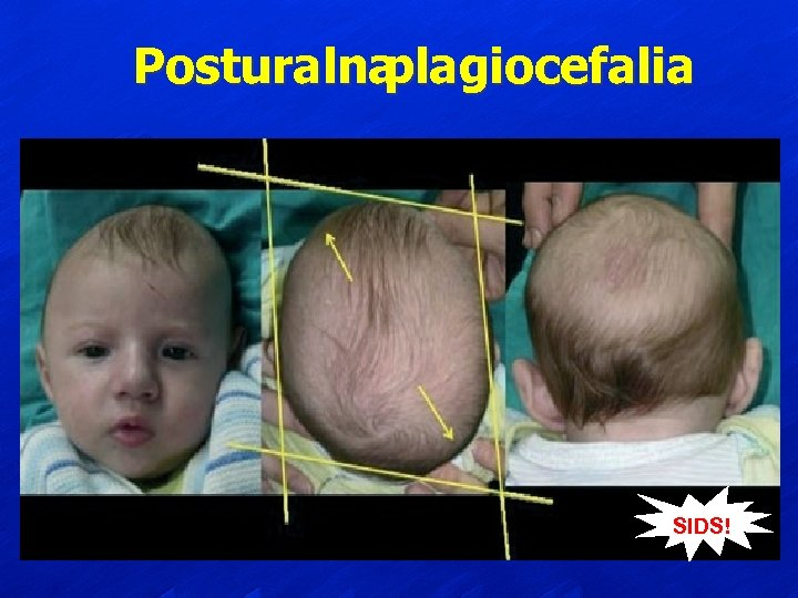 Posturalna plagiocefalia SIDS!