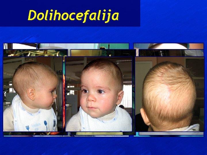 Dolihocefalija