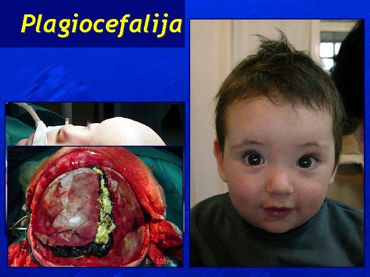 Plagiocefalija