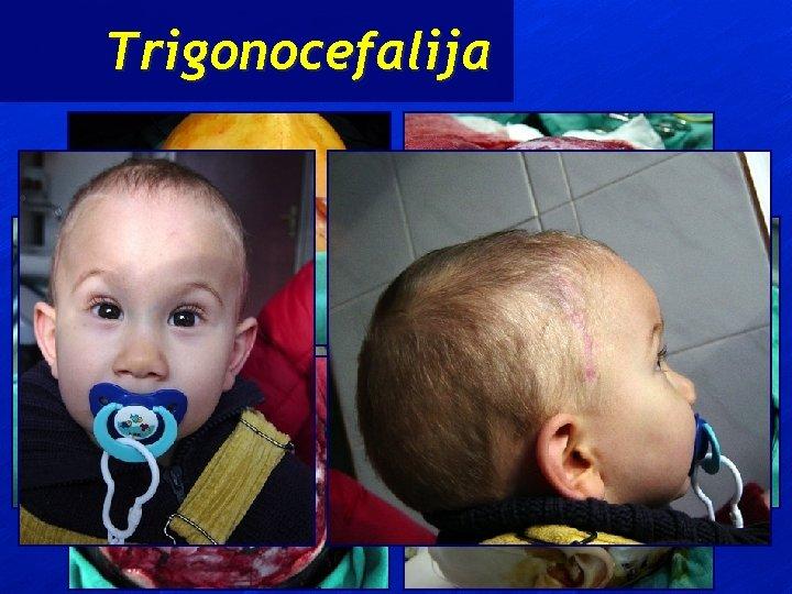 Trigonocefalija