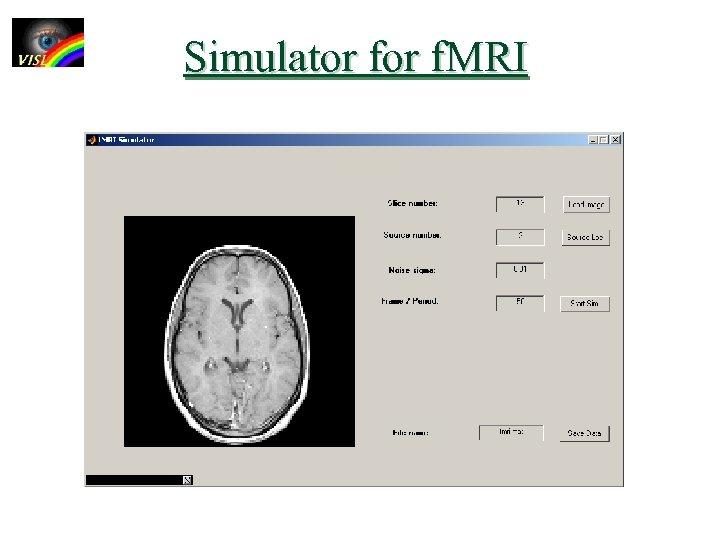 Simulator f. MRI