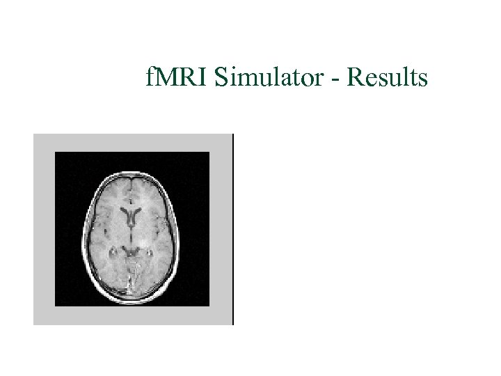 f. MRI Simulator - Results