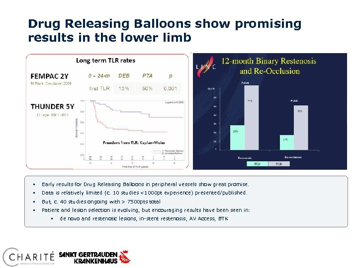Drug Releasing Balloons show promising results in the lower limb § Early results for
