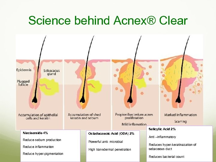Science behind Acnex® Clear Salicylic Acid 2% Niacinamide 4% Reduce sebum production Reduce inflammation