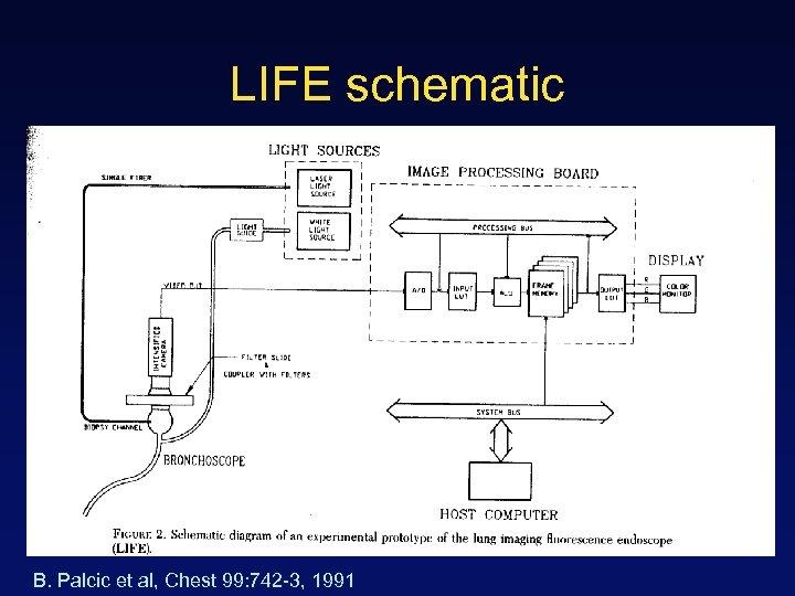 LIFE schematic B. Palcic et al, Chest 99: 742 -3, 1991