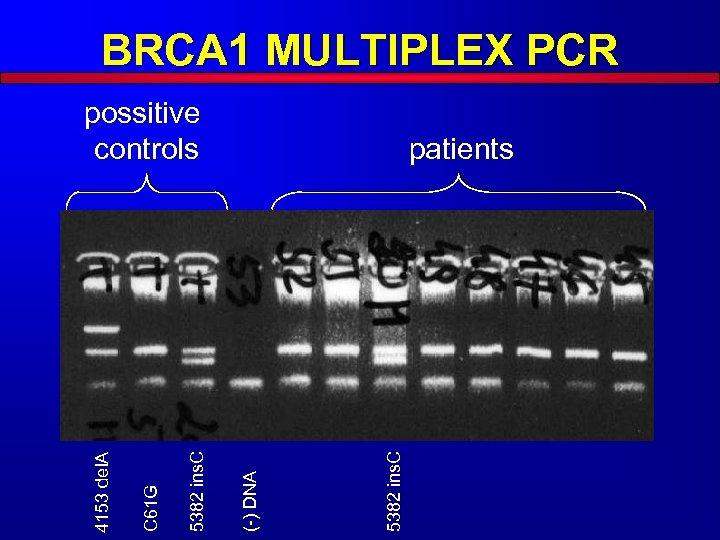 BRCA 1 MULTIPLEX PCR 5382 ins. C patients (-) DNA 5382 ins. C C