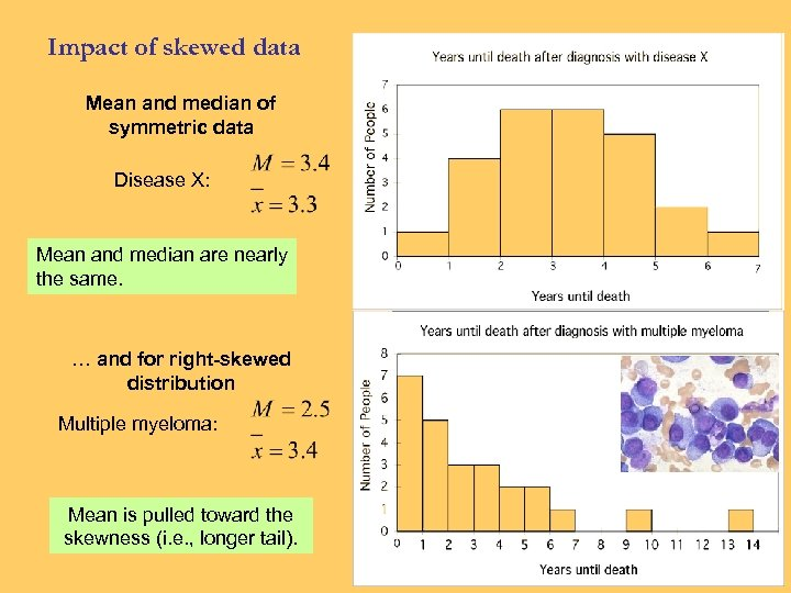 Impact of skewed data Mean and median of symmetric data Disease X: Mean and
