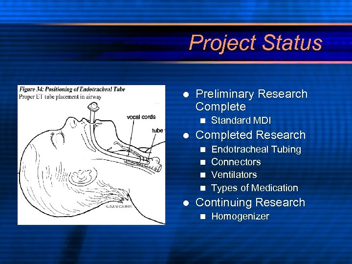 Project Status l Preliminary Research Complete n l Standard MDI Completed Research Endotracheal Tubing