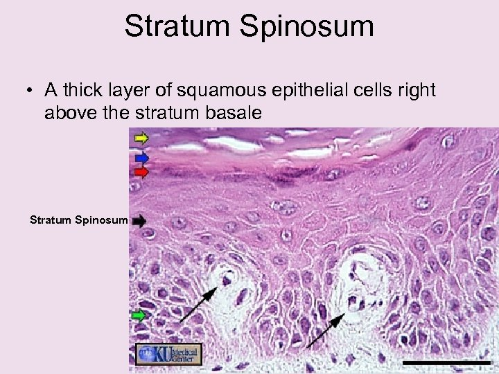 Stratum Spinosum • A thick layer of squamous epithelial cells right above the stratum