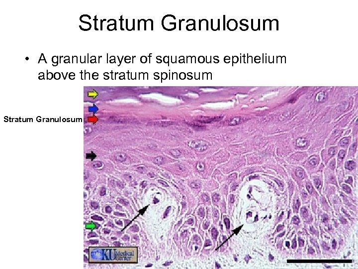 Stratum Granulosum • A granular layer of squamous epithelium above the stratum spinosum Stratum