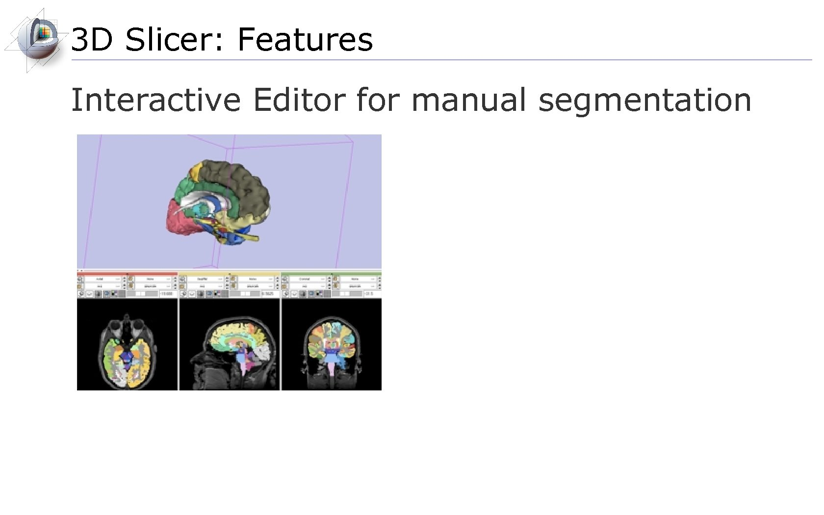3 D Slicer: Features Interactive Editor for manual segmentation