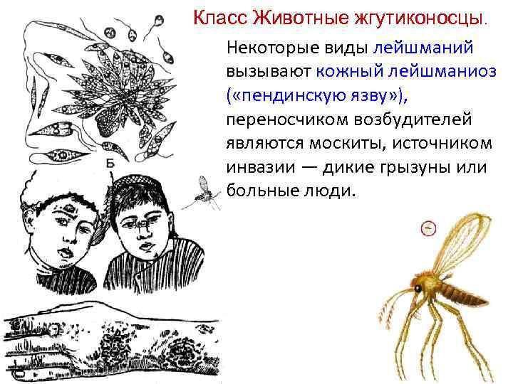 Класс Животные жгутиконосцы. Некоторые виды лейшманий вызывают кожный лейшманиоз ( «пендинскую язву» ), переносчиком