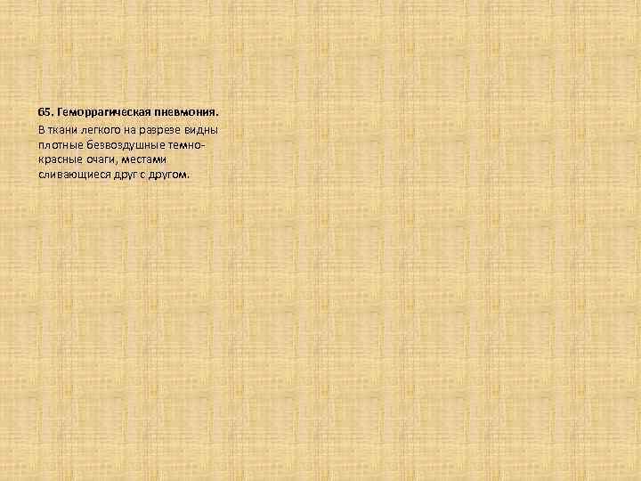 65. Геморрагическая пневмония. В ткани легкого на разрезе видны плотные безвоздушные темнокрасные очаги, местами