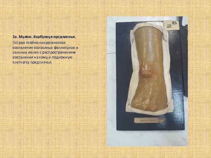 2 а. Муляж. Карбункул предплечья. Острое гнойно-некротическое воспаление волосяных фолликулов и сальных желез с