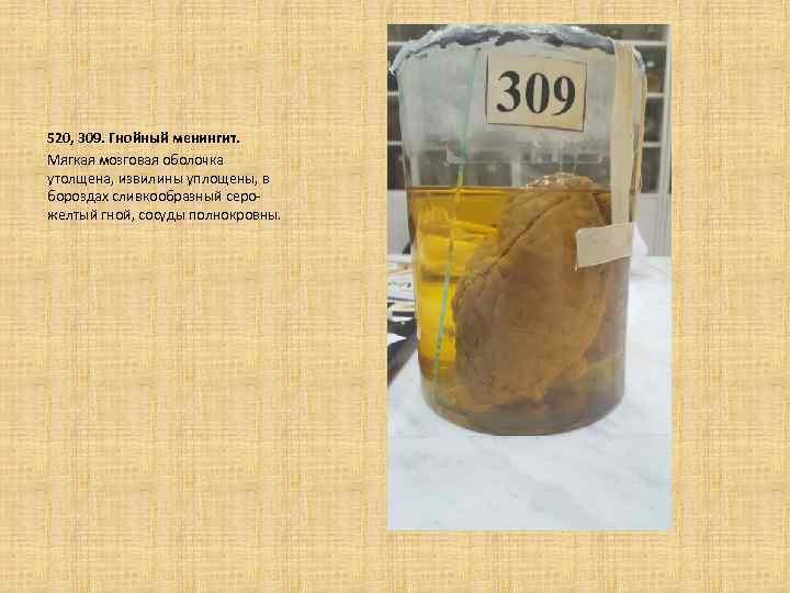 520, 309. Гнойный менингит. Мягкая мозговая оболочка утолщена, извилины уплощены, в бороздах сливкообразный серожелтый