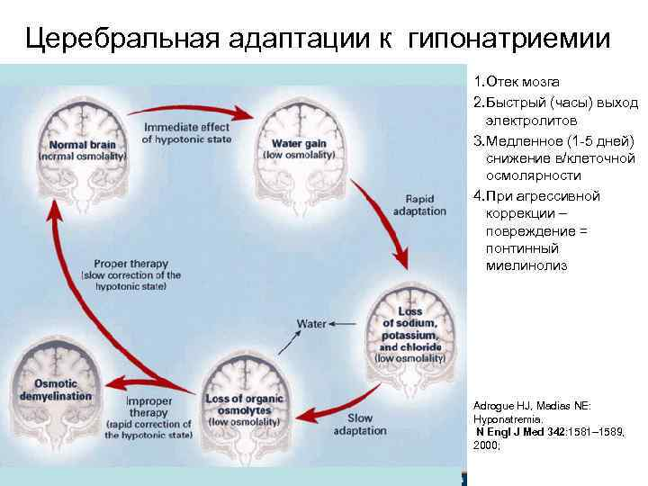 Церебральная адаптации к гипонатриемии 1. Отек мозга 2. Быстрый (часы) выход электролитов 3. Медленное