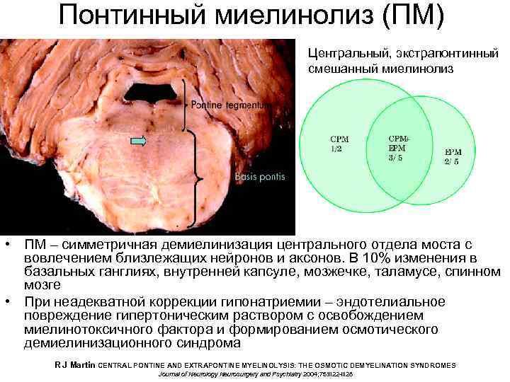 Понтинный миелинолиз (ПМ) Центральный, экстрапонтинный смешанный миелинолиз • ПМ – симметричная демиелинизация центрального отдела