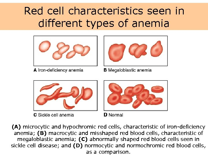Red cell characteristics seen in different types of anemia (A) microcytic and hypochromic red