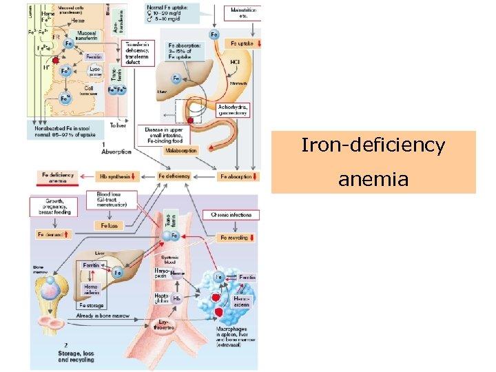 Iron-deficiency anemia