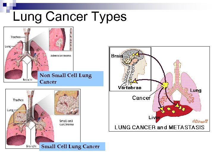 Lung Cancer Types Non Small Cell Lung Cancer