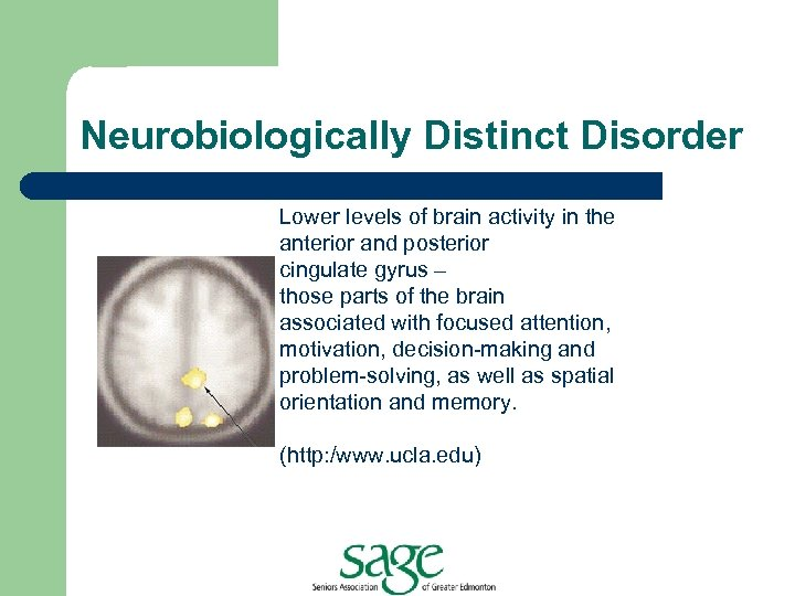Neurobiologically Distinct Disorder MRI and PET scans indicate lower Lower levels of brain activity