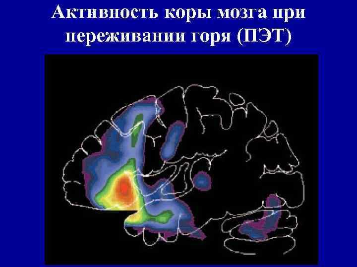 Активность коры мозга при переживании горя (ПЭТ)