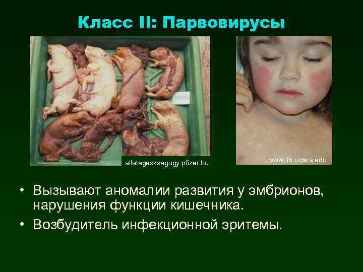 Класс II: Парвовирусы allategeszsegugy. pfizer. hu www. lib. uiowa. edu • Вызывают аномалии развития