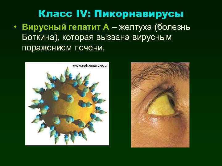 Класс IV: Пикорнавирусы • Вирусный гепатит А – желтуха (болезнь Боткина), которая вызвана вирусным