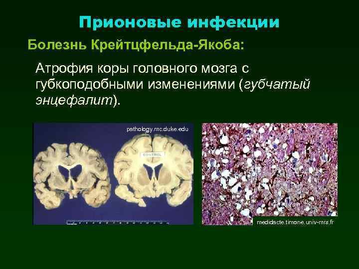 Прионовые инфекции Болезнь Крейтцфельда-Якоба: Атрофия коры головного мозга с губкоподобными изменениями (губчатый энцефалит). pathology.