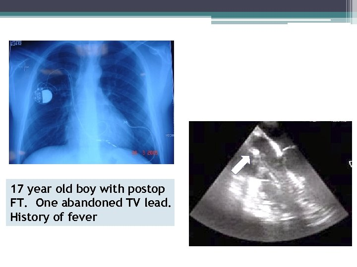 Safety of Lead Extraction After Decades of Implantation