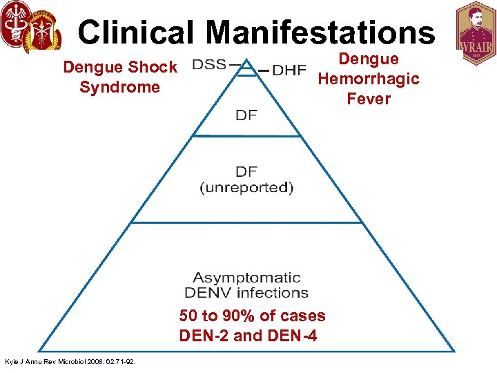 Clinical Manifestations Dengue Shock Syndrome Dengue Hemorrhagic Fever 50 to 90% of cases DEN-2