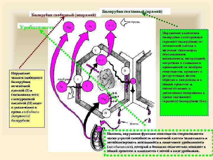 Билирубин свободный (непрямой) Билирубин связанный (прямой) Уробилиноген Нарушение захвата свободного билирубина печеночной клеткой (I)