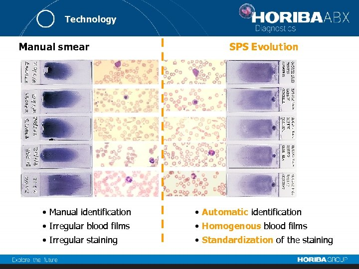 Technology Manual smear SPS Evolution • Manual identification • Automatic identification • Irregular blood