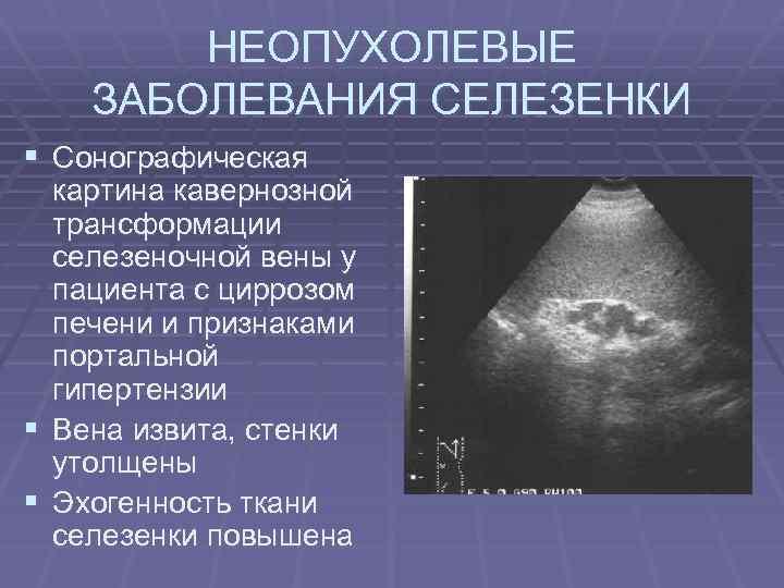 НЕОПУХОЛЕВЫЕ ЗАБОЛЕВАНИЯ СЕЛЕЗЕНКИ § Сонографическая § § картина кавернозной трансформации селезеночной вены у пациента
