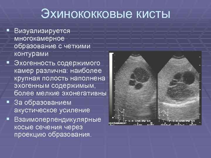 Эхинококковые кисты § Визуализируется § § § многокамерное образование с четкими контурами Эхогенность содержимого