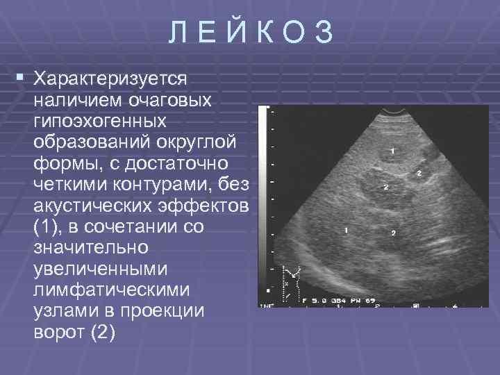 ЛЕЙКОЗ § Характеризуется наличием очаговых гипоэхогенных образований округлой формы, с достаточно четкими контурами, без