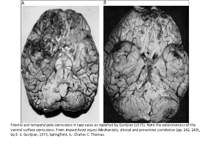 Frontal and temporal pole contusions in two cases as reported by Gurdjian (1975). Note
