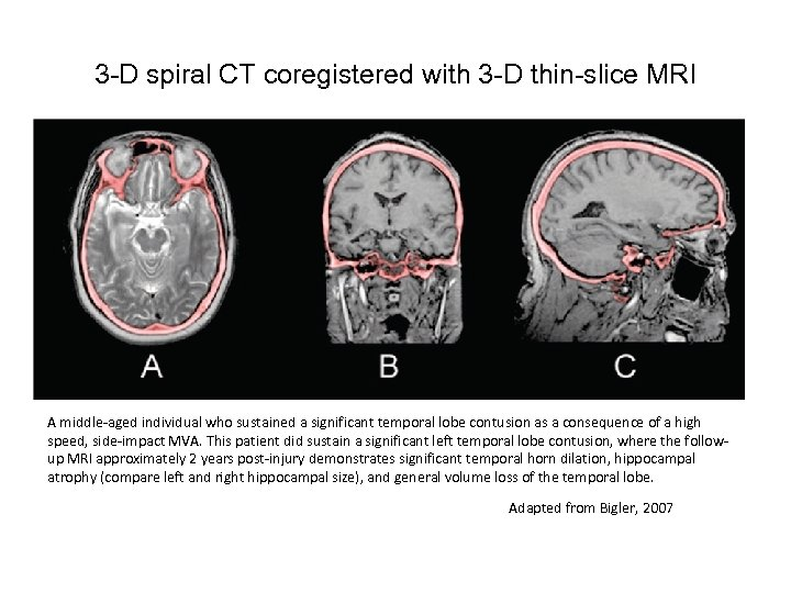 3 -D spiral CT coregistered with 3 -D thin-slice MRI A middle-aged individual who