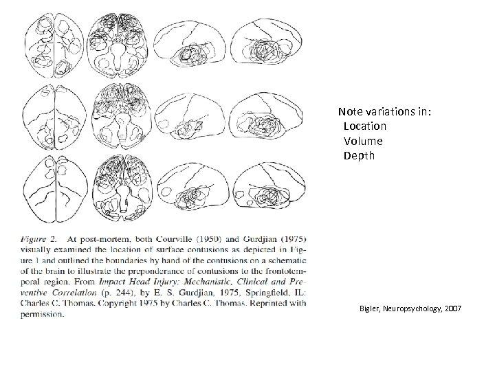 Note variations in: Location Volume Depth Bigler, Neuropsychology, 2007