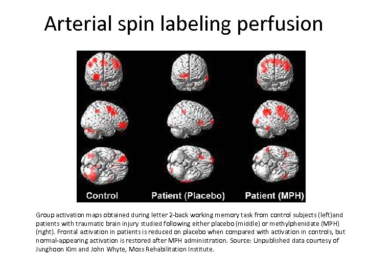 Arterial spin labeling perfusion Group activation maps obtained during letter 2 -back working memory