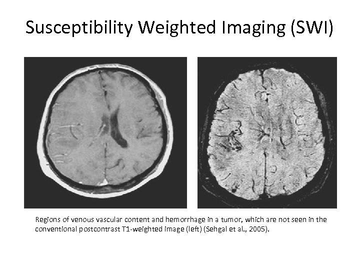 Susceptibility Weighted Imaging (SWI) Regions of venous vascular content and hemorrhage in a tumor,