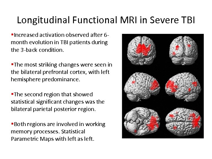 Longitudinal Functional MRI in Severe TBI §Increased activation observed after 6 month evolution in