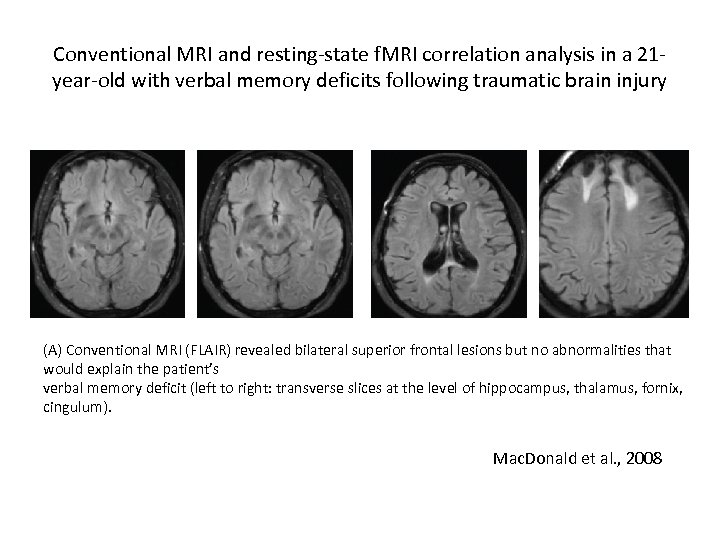 Conventional MRI and resting-state f. MRI correlation analysis in a 21 year-old with verbal