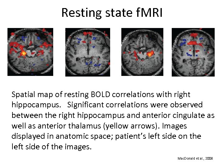 Resting state f. MRI Spatial map of resting BOLD correlations with right hippocampus. Significant
