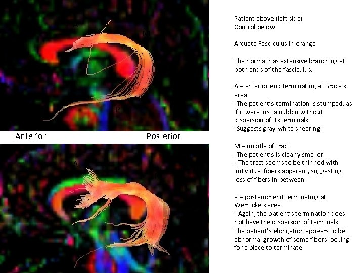 A Patient above (left side) Control below M Arcuate Fasciculus in orange The normal